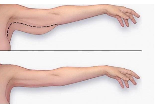 il modo migliore per perdere il grasso del braccio velocemente
