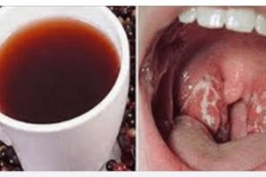Uno straordinario rimedio naturale contro il mal di gola