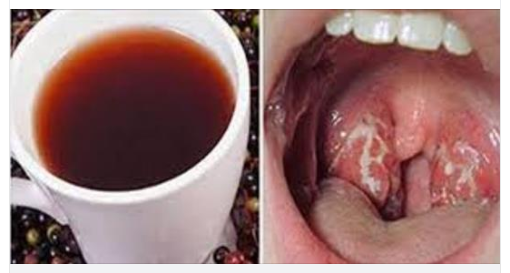 Ti insegneremo come sbarazzarti delle infezioni alla gola for Rimedio per il mal di gola