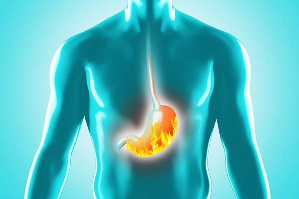 tipo di dieta per esofagite
