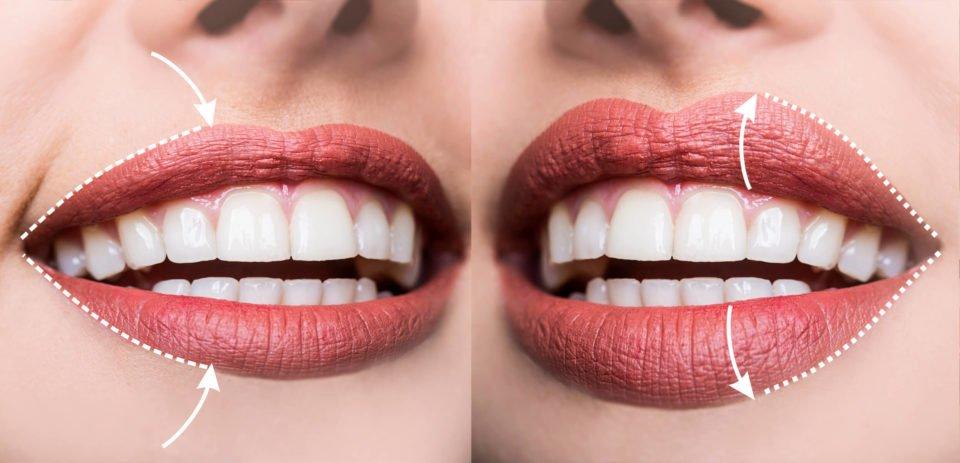 Labbra sottili: ecco un ottimo modo per ingrandirle e come truccarle