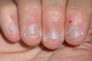 mordersi le unghie corrisponde senza mordersi le unghie
