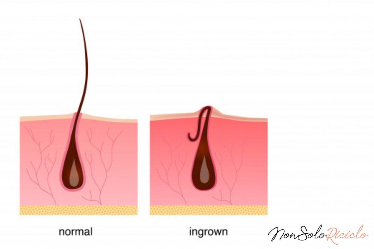 come eliminare un pelo incarnito 7