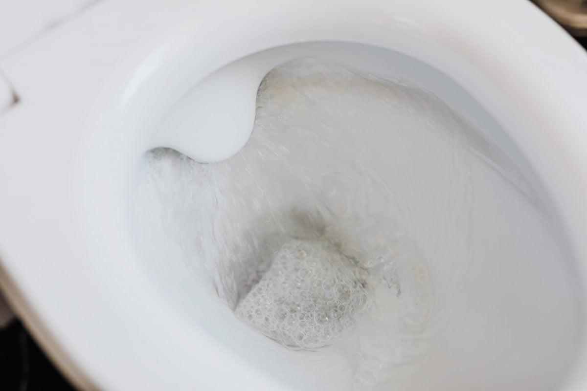 gel anticalcare fai da te 2