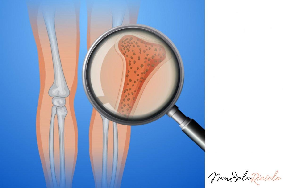 Il collagene per combattere l'osteoporosi: la cura innovativa
