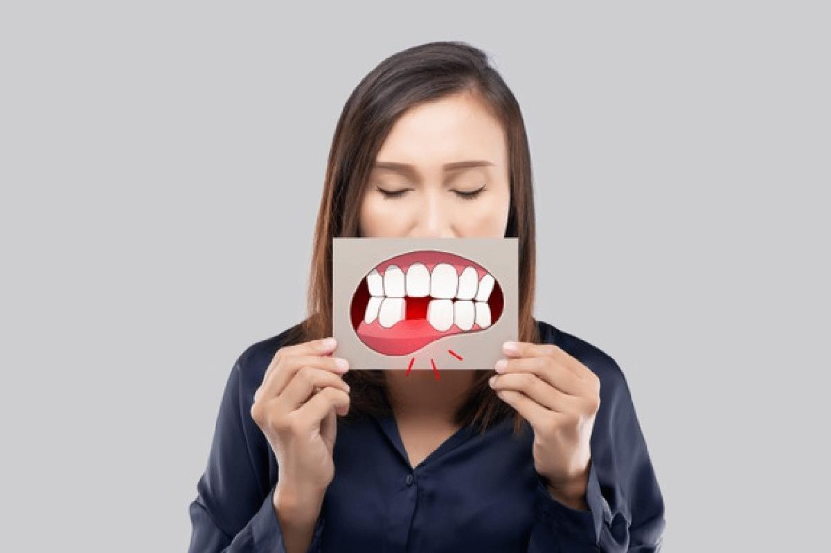 gengivite o periodontite scopri le gengivite